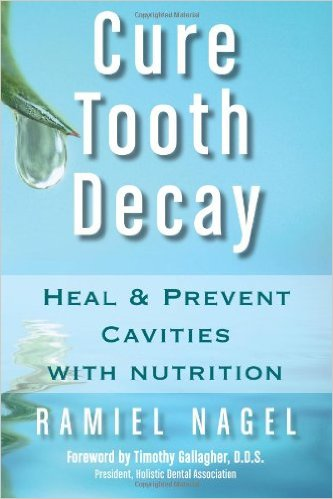 Cure Tooth Decay – Heal & Prevent Cavities with Nutrition by Ramiel Nagel